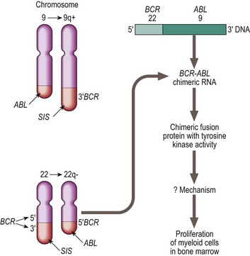 In A Translocation Between Chromosomes 9 And 22 T922 The Oncogene ABL On Chromosome Is Moved To Breakpoint Cluster