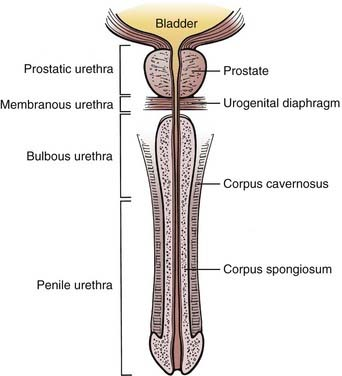 Cancer Of The Male Urethra And Penis Oncohema Key