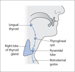 Thyroid Anatomy And Physiology Oncohema Key