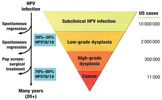 Papillomavirus in oro-genital infection | Oncohema Key
