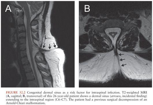 epidural abscess oncohema key