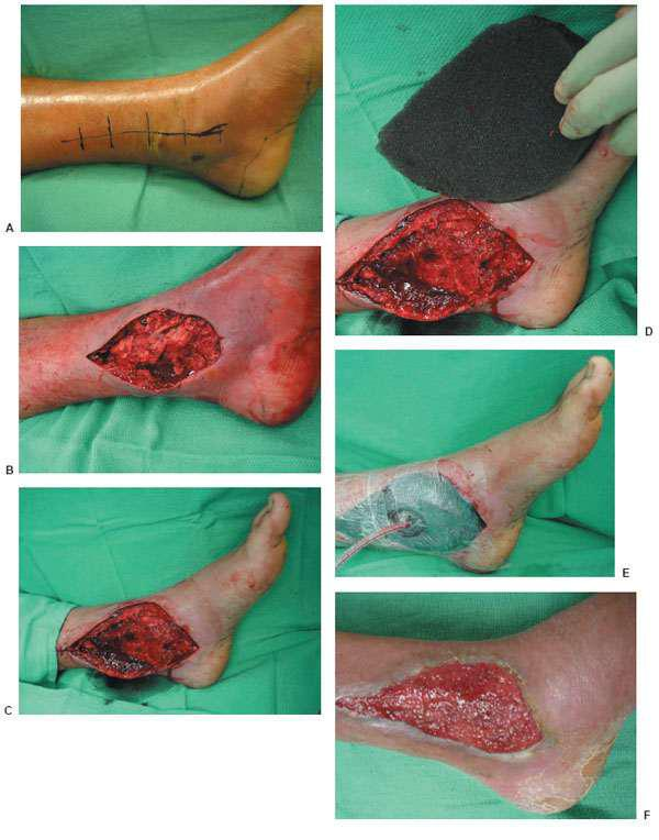 Skin Grafting Techniques for Open Diabetic Foot Wounds | Oncohema Key