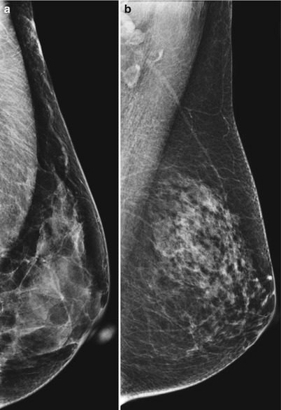 mammography techniques  positioning  and optimizing image quality