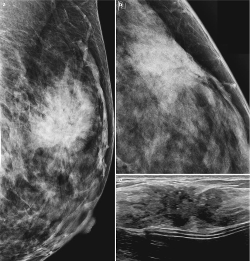 Mammographic Signs of Breast Cancer | Oncohema Key
