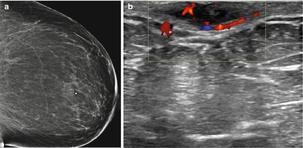 Breast Ultrasound | Oncohema Key