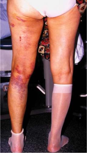 Extremity Soft-Tissue Sarcomas | Oncohema Key