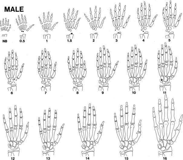 Figure 25 10 Progression Of Ossification The Hand And Wrist In Boys Tracings Are Modified From Standards Gruelich Pyle According To