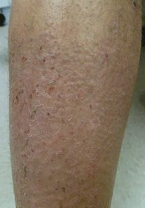 Dermatologic conditions in the elderly | Oncohema Key